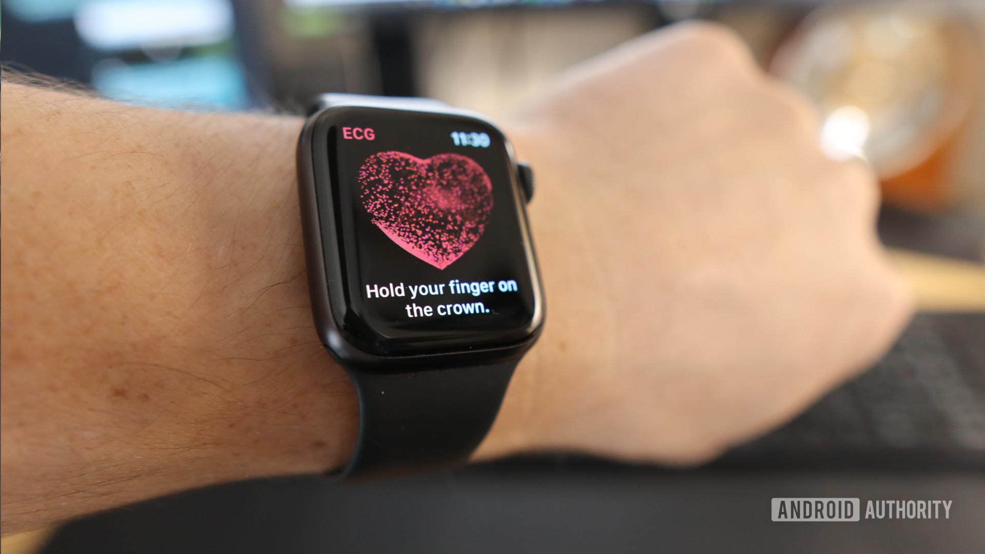 ECG Apple Watch App 2