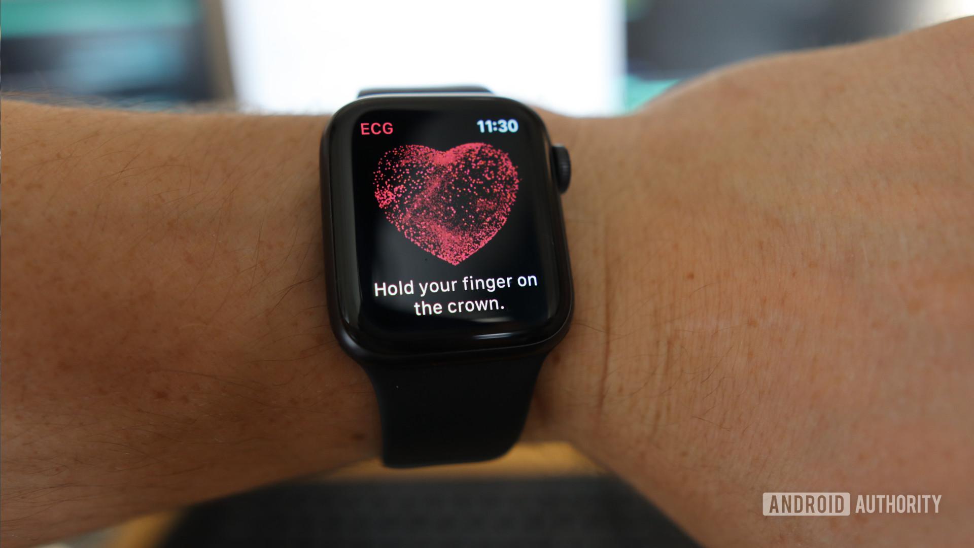 ECG Apple Watch App