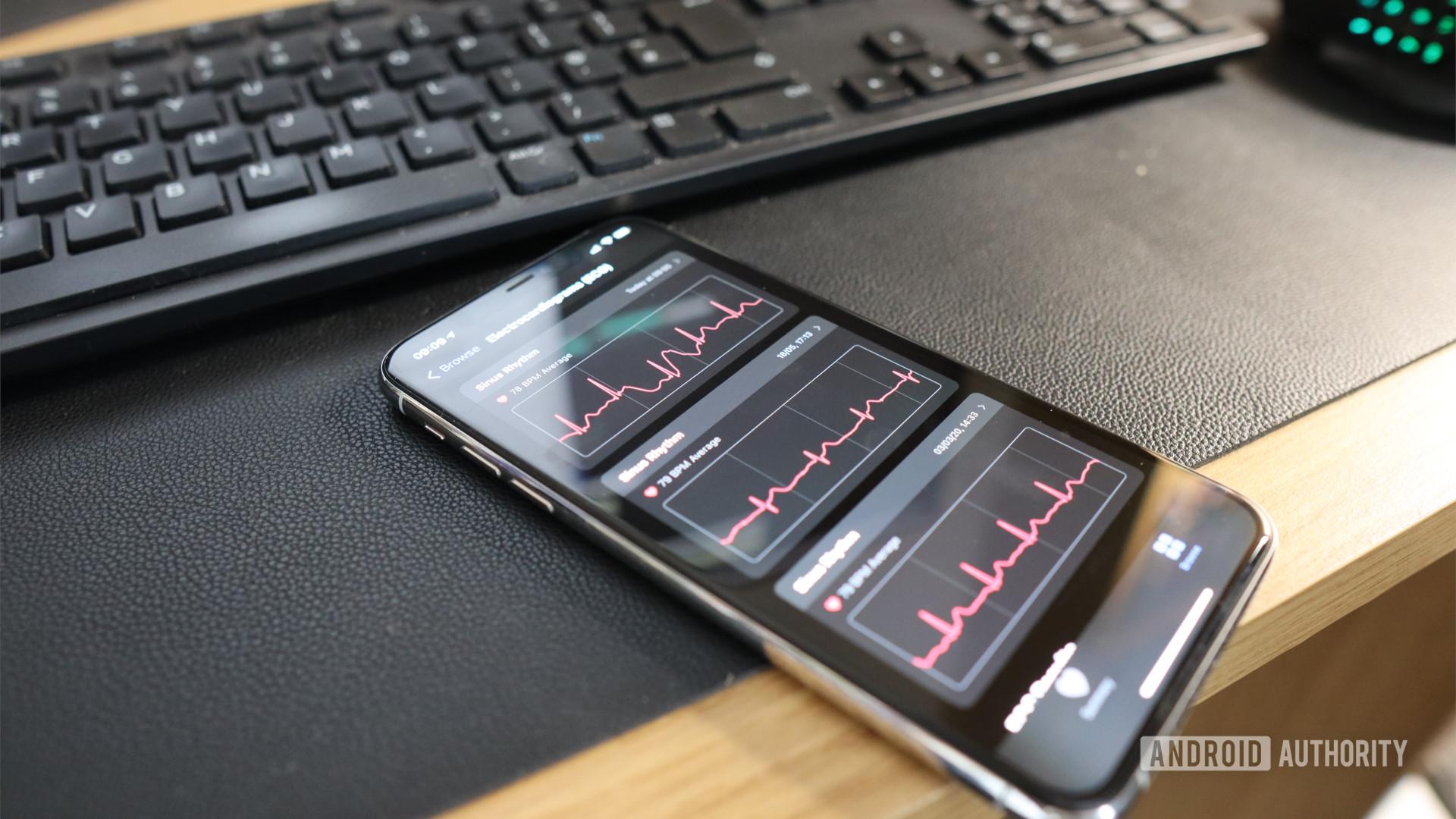 ECG Health App
